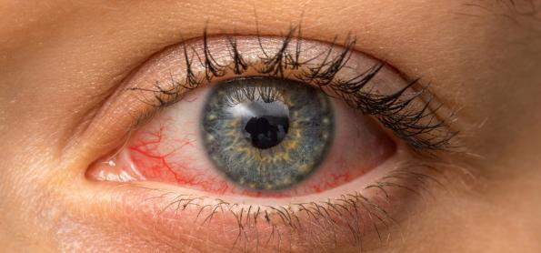 Saúde dos olhos exige mais atenção no inverno